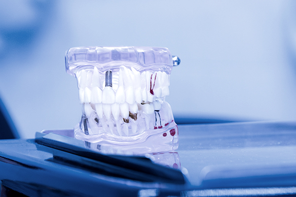 Plastic tooth model for oral health care study in dental office